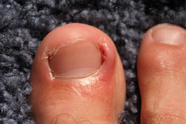Noticable Signs You May Have an Ingrown Toenail