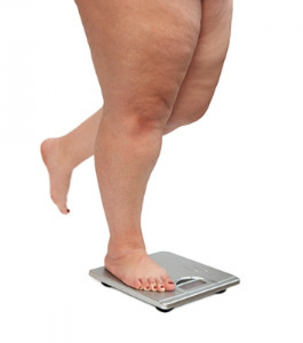 Can Plantar Fasciitis be Linked to Obesity?