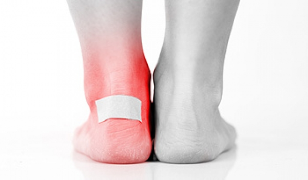 Blisters on the Feet Can Protect Damaged Skin