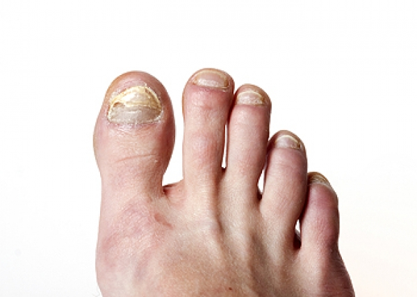 How Toenail Fungus Is Contagious