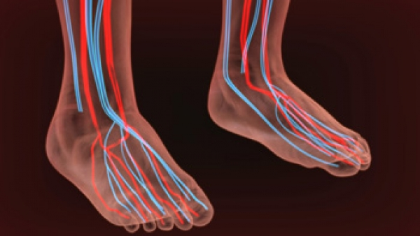 What Are Systemic Diseases of the Foot?