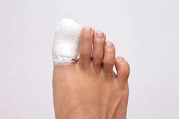 Could My Stubbed Toe Be Broken?