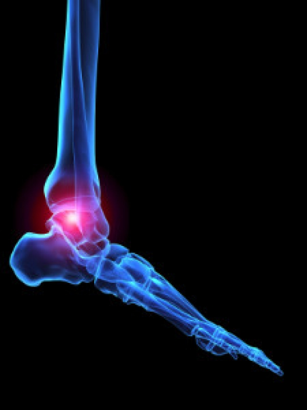 A Common Type of Arthritis That Affects the Feet