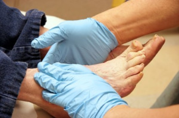 Daily Foot Care for Diabetic Patients